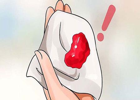 Âm đạo chảy máu bất thường