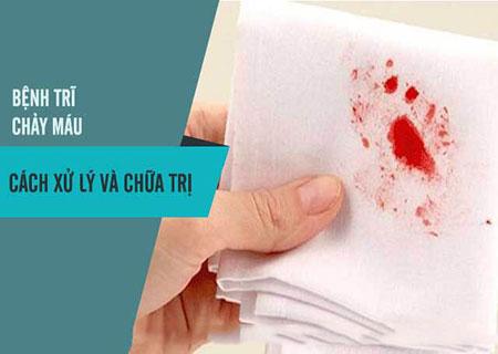 Bệnh trĩ chảy máu